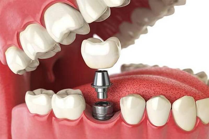Plano odontológico com Prótese Brasília-DF 61 3042-2500
